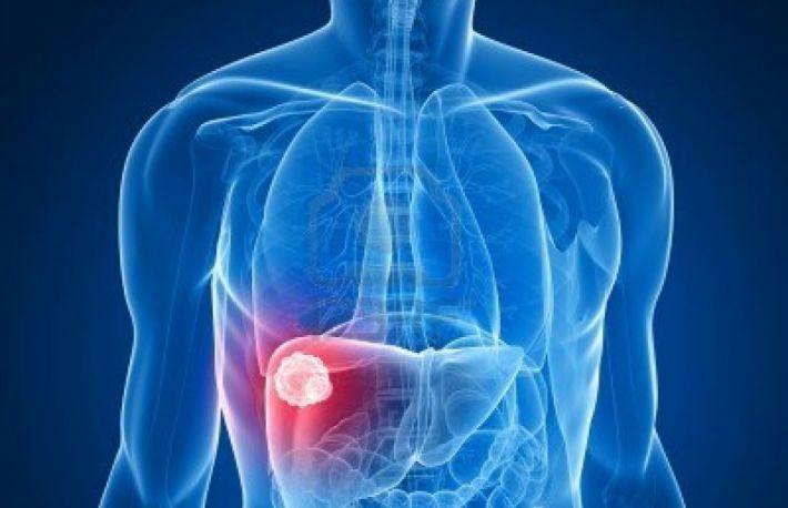 tratament de nutriție articulară articulară cum să tratezi artrita pomeților.