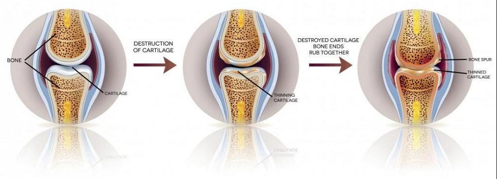 articulațiile rănesc tratamentul genunchilor