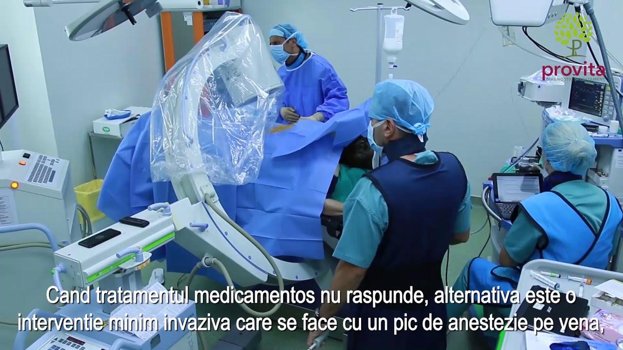 tratamentul conservator al articulației false medicamente comune 911