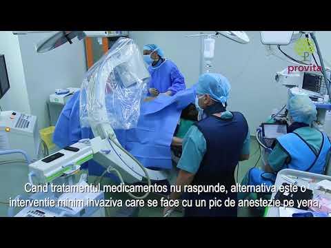 tratamentul conservator al articulației false artroza genunchiului recenzii vindecate