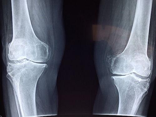 tratamentul crepitului genunchiului 911 gel pentru dureri articulare