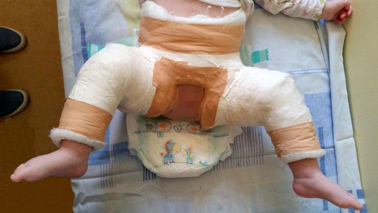 tratamentul displaziei de șold de gradul II jeleu pentru dureri articulare