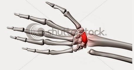 tratamentul fracturilor de umăr medicamente pentru durerea articulară la vârstnici