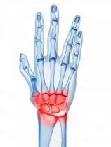 tratamentul inflamației articulațiilor la încheietura mâinii injecție intraarticulară de medicamente în articulația genunchiului