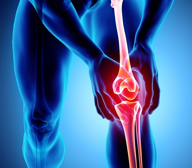 tratamentul medicației cu artroză unguent pentru tratamentul meniscului genunchiului