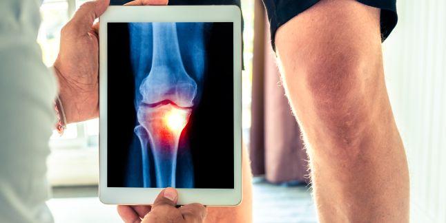 durere la nivelul brațului în articulație pentru articulația genunchiului