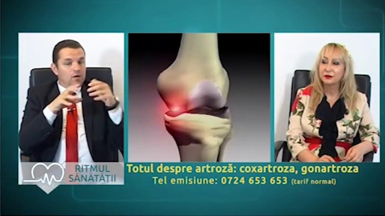 tratarea numărului de artroză