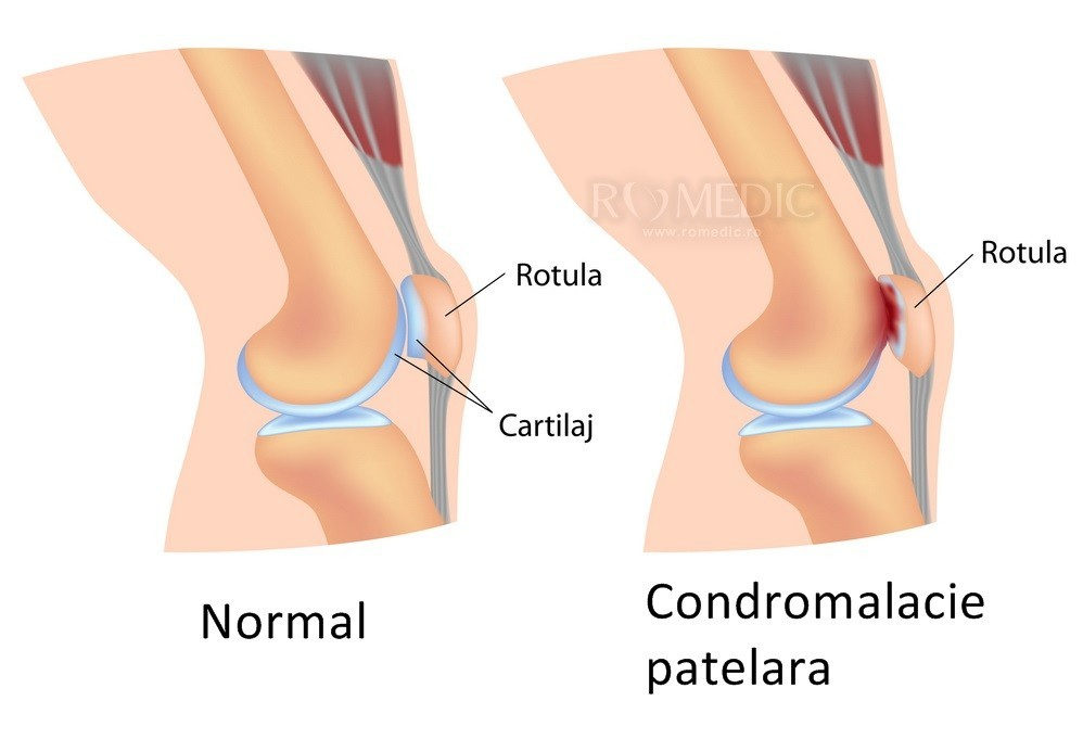 umflarea sacului articulației genunchiului