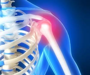 tipuri de leziuni la șold durere de flexie la nivelul soldului