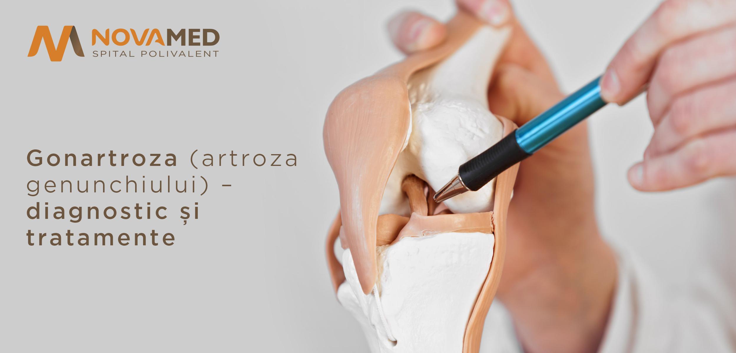 artroză tratamentul genunchiului