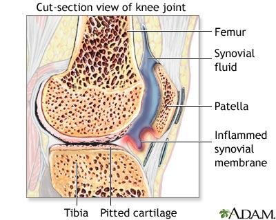 boala sinuzita articulației genunchiului