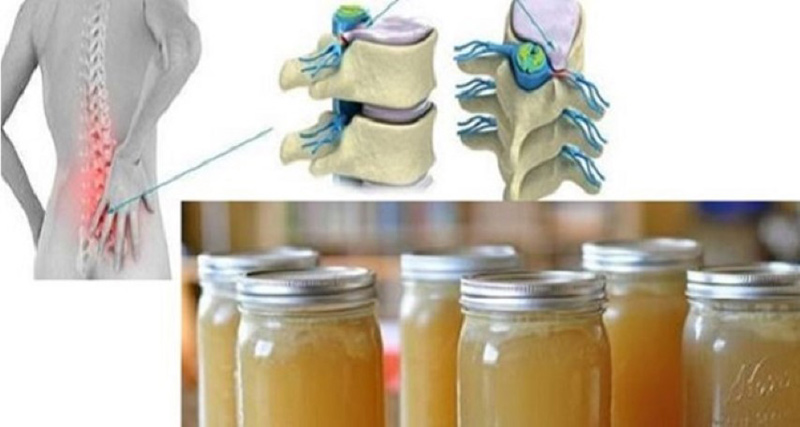 simptome și tratament de șold