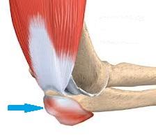 articulația genunchiului doare când este îndoită artrita și artroza articulațiilor tratamentului piciorului