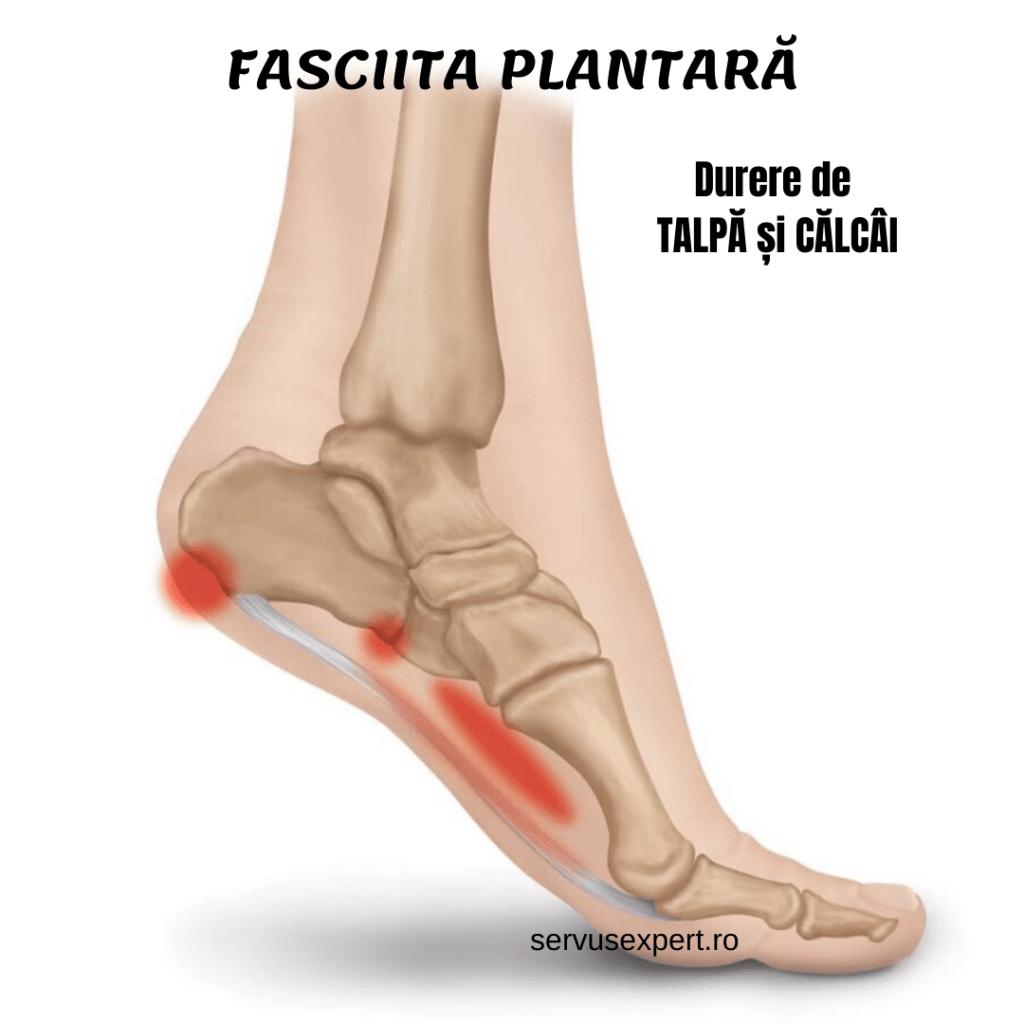 dureri articulare la călcâiele picioarelor