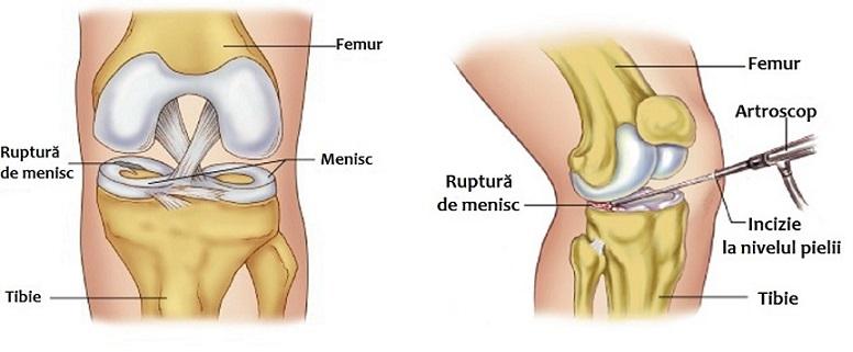 unguent pentru tratamentul meniscului genunchiului