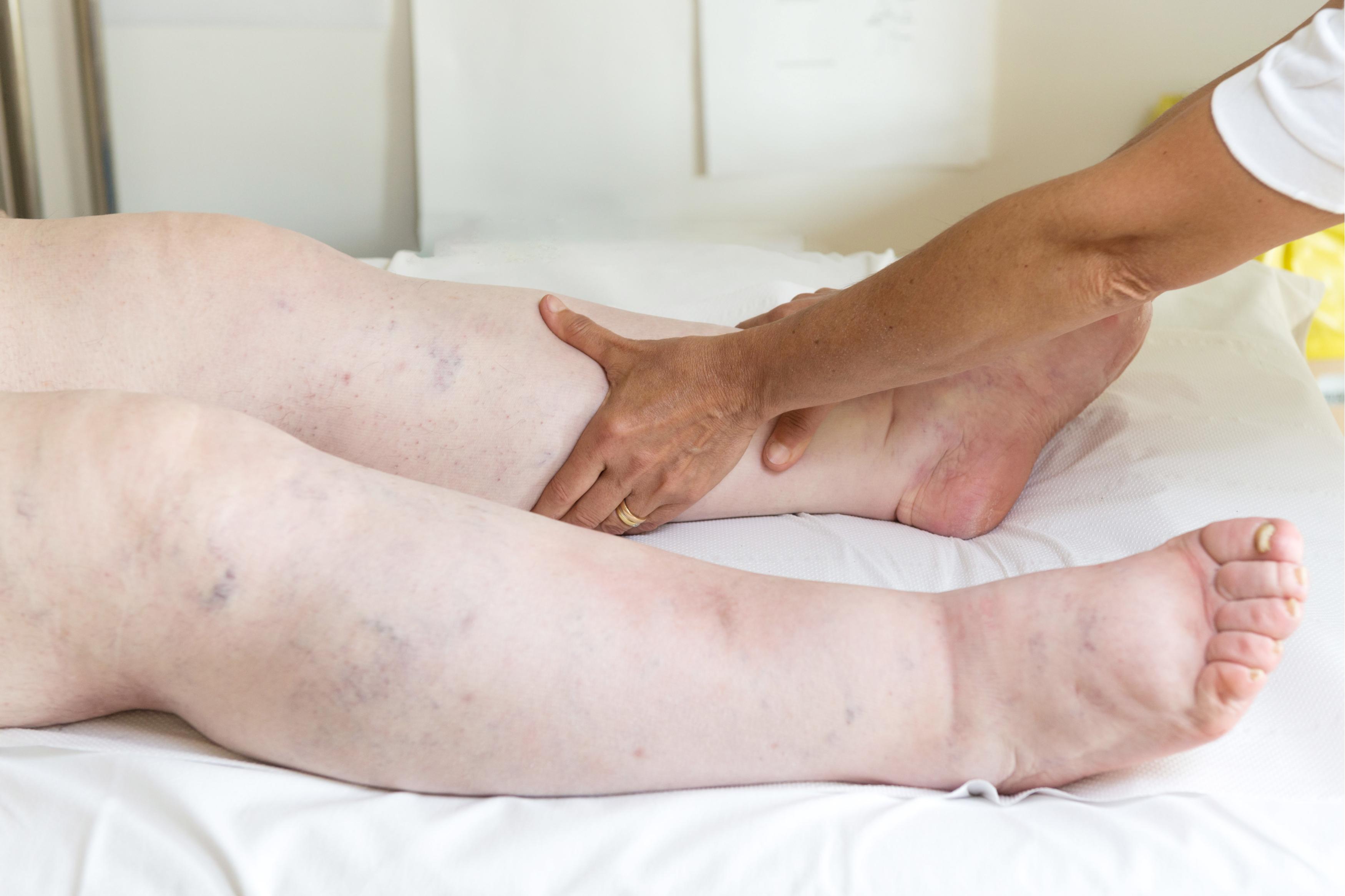 Ameliorați inflamația articulațiilor picioarelor. Poliartrita reumatoida