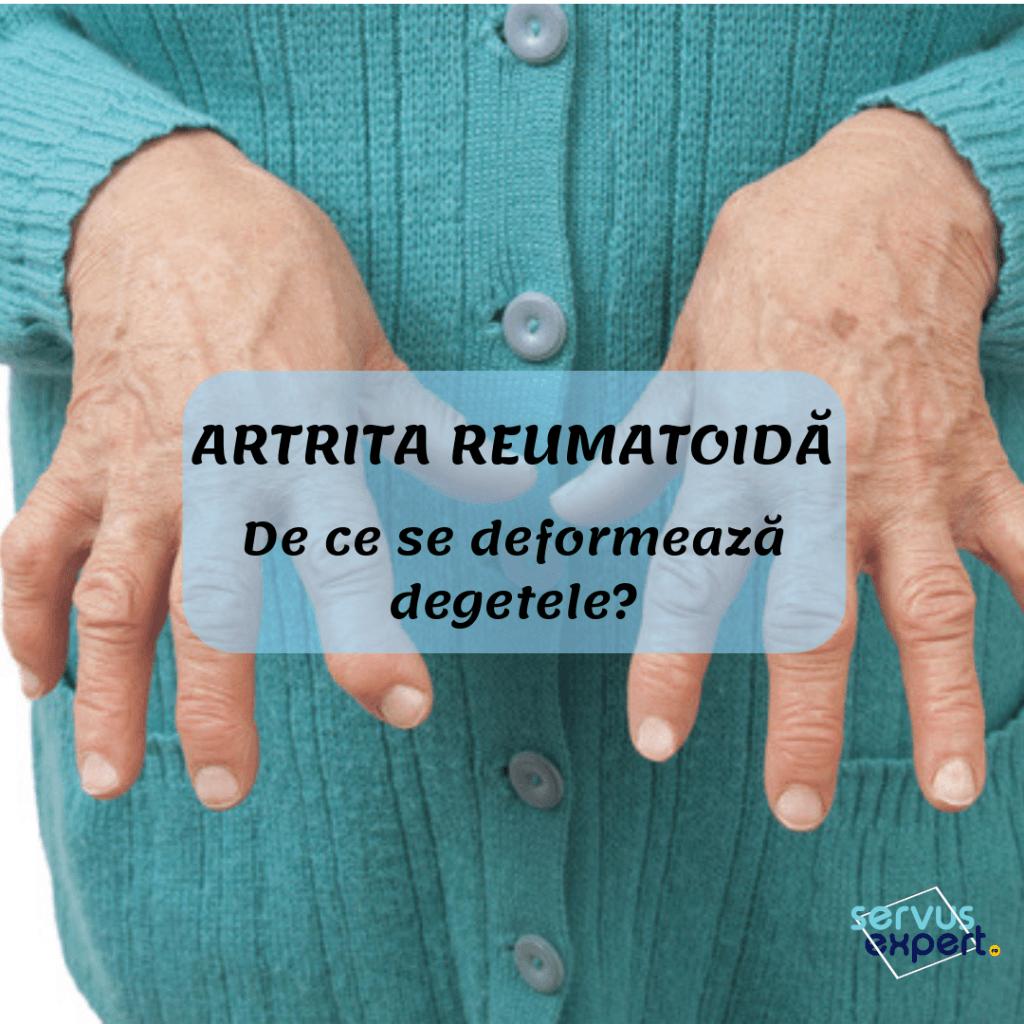 artrita roseata degetelor tratamentul articular la genice