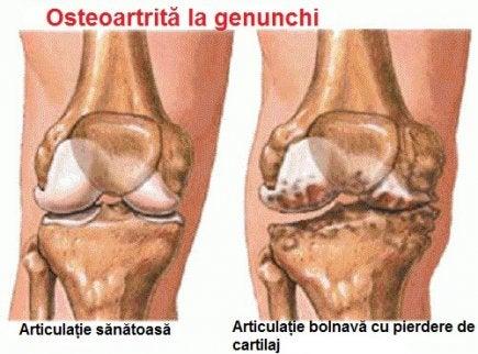 umflarea în tratamentul articulației genunchiului Tratamentul cu noroi Saki pentru artroză