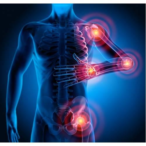ce este artroza articulațiilor arcuite braț dureros în articulația umărului și dedesubt