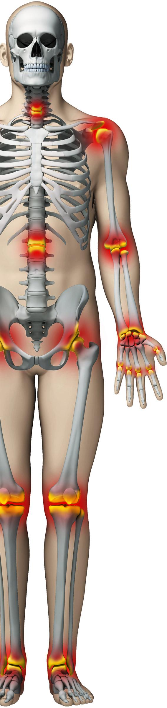 articulațiile doare la persoanele în vârstă în tratamentul articulației Ivanovo