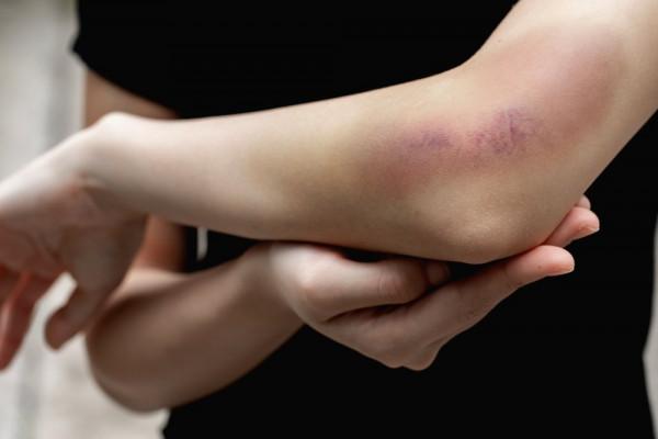 tratamentul artrozei la vânătăi