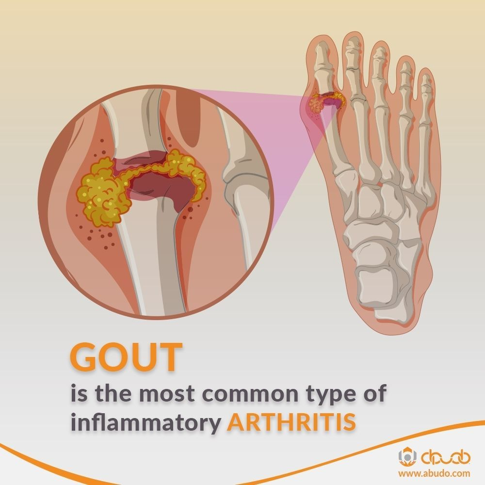 artrita novice a degetelor