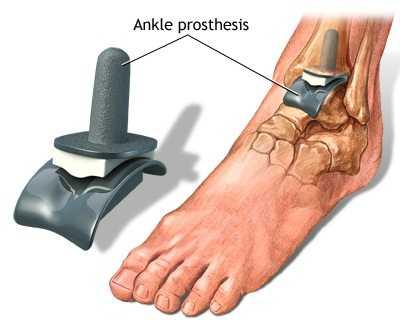 artroza și artrita articulației gleznei artrita simptomelor degetului