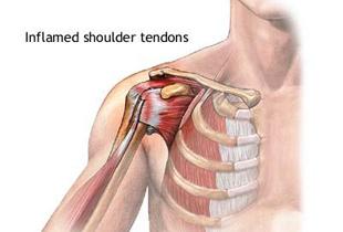 după exercițiu, durere în articulația umărului