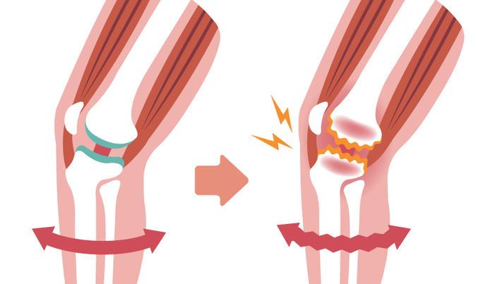 diagnosticul gonartrozei bolii genunchiului