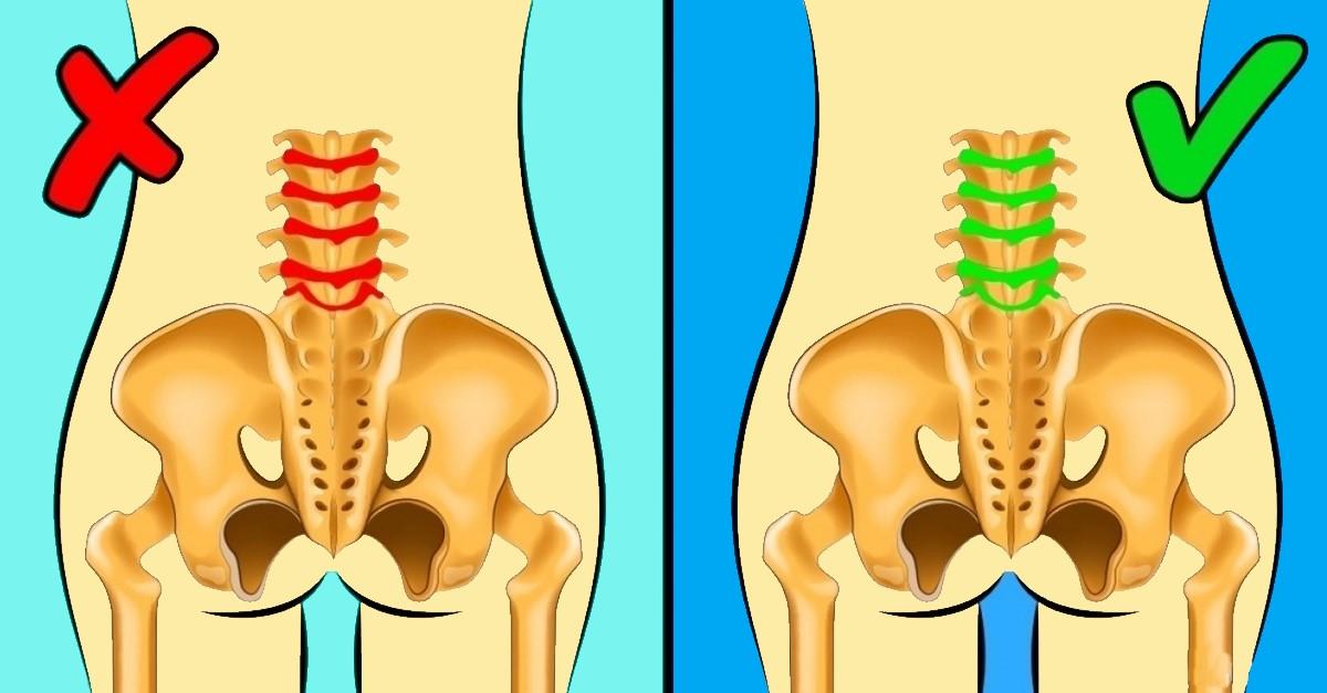 durerea de spate lombara