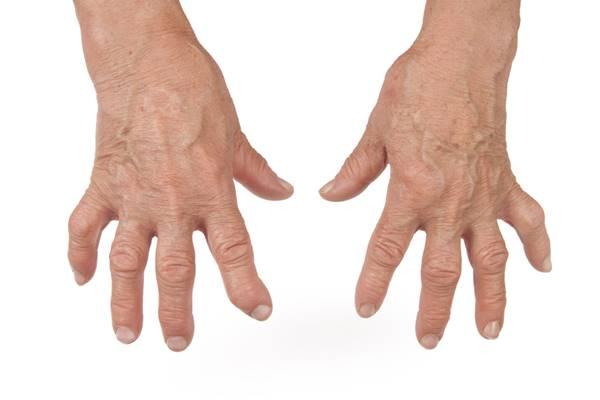 articulația umflată pe tratamentul degetelor index tratament comun cu cartofi
