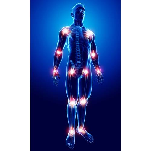 crize și durere în toate articulațiile corpului Tratamentul articular cu condroxid