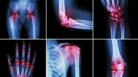 tratament articular prin durere