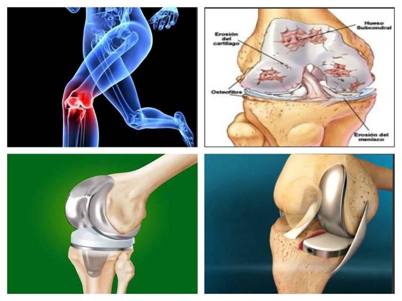 dureri la endoproteza genunchiului artrita reumatoidă în brațe