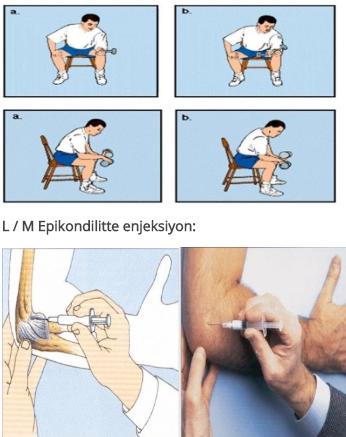 tratamentul artrozei articulației piciorului și gleznei ce medicamente tratează bursita cotului