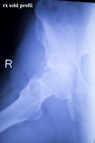 boli articulare artrita artroza