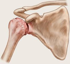 poate fi vindecată artroza umărului