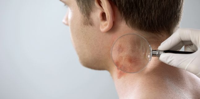 remediu pentru umflarea articulației dureri articulare degetul
