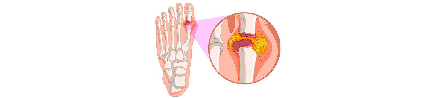 plante medicinale pentru tratamentul articular pentru artroză artroza deformantă a gradului 2 al articulației genunchiului