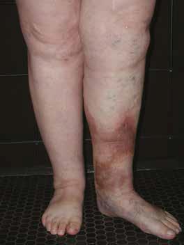 boli ale scheletului și articulațiilor