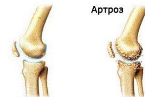 artroza sau artrita diferenței articulației genunchiului