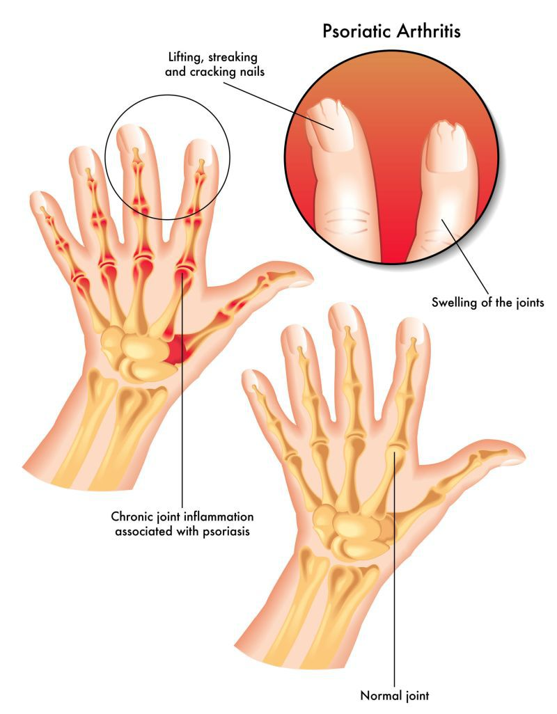 modul de prevenire a artritei articulare tratamentul cotului