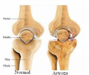 om care suferă de dureri articulare cum să tratezi articulațiile mici ale degetelor