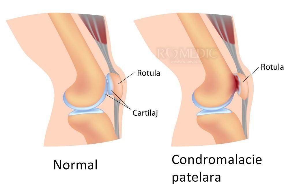 toate tipurile de tratament cu artroza cum să tratezi un atac de artrită