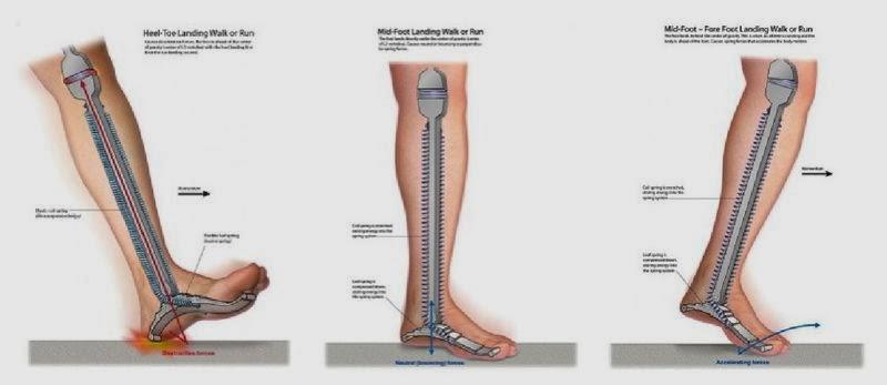 articulațiile doare după ce alerga ce să faci dispozitive fiziologice pentru tratamentul articulațiilor