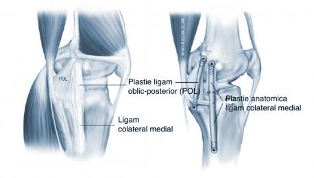 osteocondroza complicațiilor articulației genunchiului