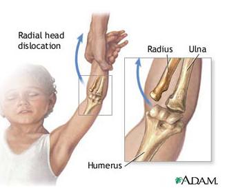 durere în vasele articulației cotului