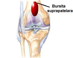 dureri amorțite în articulația șoldului