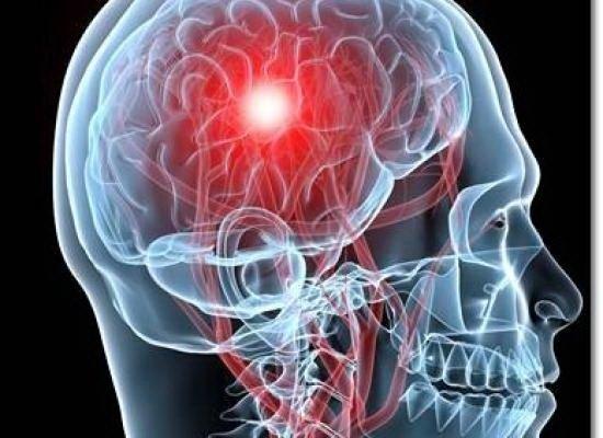 Dureri articulare cu accident vascular cerebral ischemic