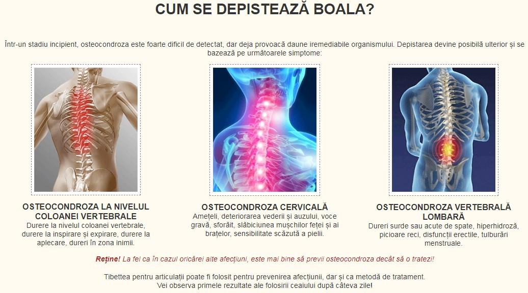 artroza tuturor articulațiilor și coloanei vertebrale unguent pentru durere în articulații cu luxații